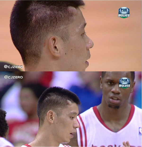 Kevin Love's elbow gave Jeremy Lin a Lovely Lump on his head